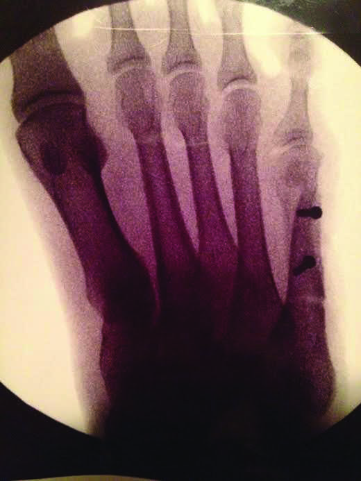 X-ray+of+Clemons%27+right+foot.